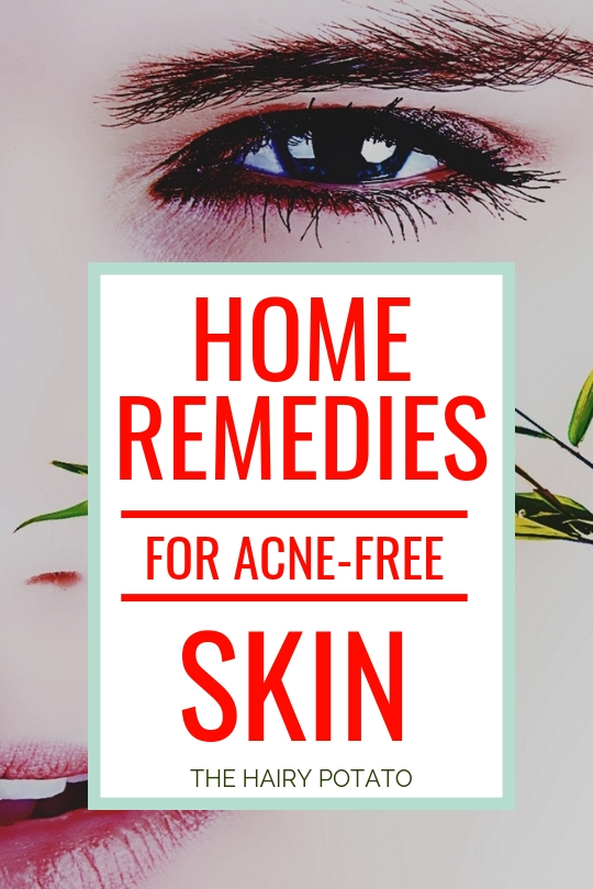 Home Remedies For Acne Free Skin